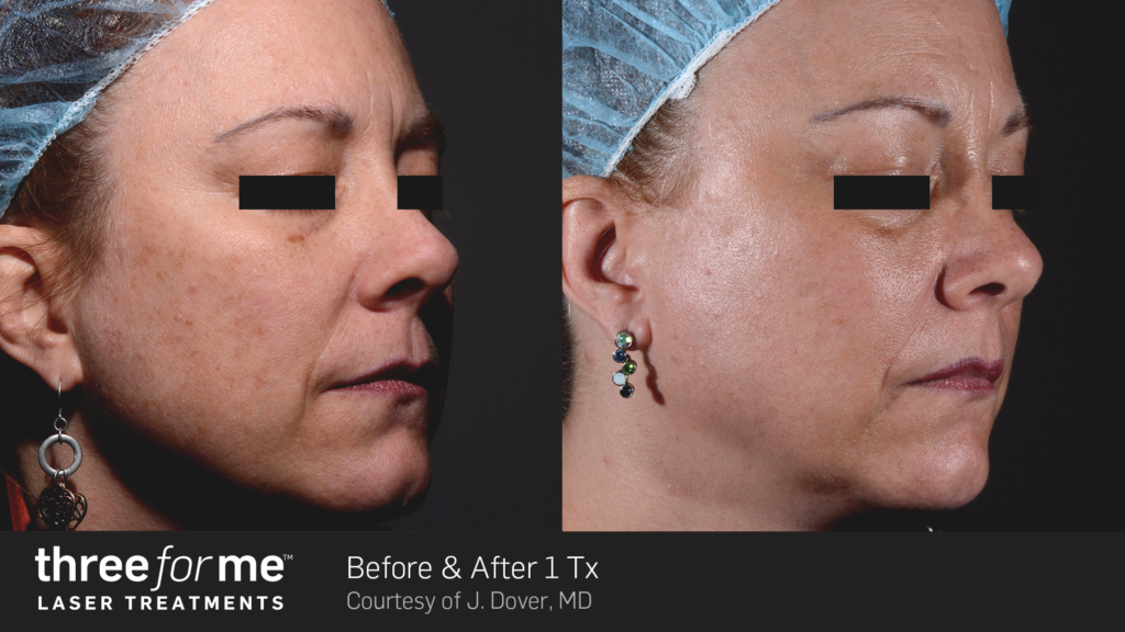 ThreeForMe-Before-&-After--J.-Dover-1Tx-(b)